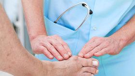 Když vás trápí palec u nohy: Jak se zbavit bolesti?