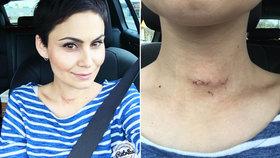 I Vlaďka Řepková se léčila se štítnou žlázou, na krku jí zůstala jizva