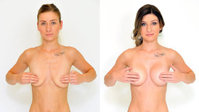 Povislá, asymetrická nebo malá prsa? Poradíme, řešení existuje