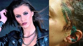 Agresor, který napadl herečku Zelníčkovou, dostal 8 let! Hvězda Ordinace zuří: Je to málo, mám strach!