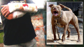 Pes v Karviné rozsápal páníčkovi ruce: Napadl i strážníky, museli ho zastřelit