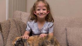 Matilda trpí vzácným syndromem, který má pouze dvacet lidí na celém světě