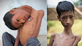 Pokus o záchranu chlapce (†13) s visící hlavou nevyšel, dítě náhle zemřelo