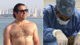 Operace křečových žil skončila amputací. Horor na klinice, kde operoval zvrhlý chirurg