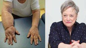 Oscarová herečka si nechala odstranit prsa a z ruky se stala tlapa!