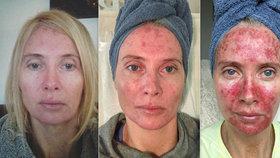 Žena podceňovala opalovací krém: Podívejte se, jak dopadla