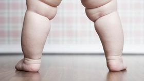 Kdy dítě z faldíků vyroste a kdy už je prostě tlusté? Pozor na to!