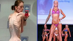 Vážila 30 kilogramů a byla na pokraji smrti. Dnes je kulturistkou!
