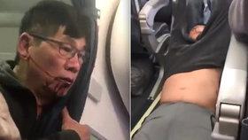 Zbitý lékař se s aerolinkami dohodl na odškodném. Dostane miliony dolarů?