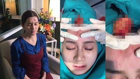 Lékař vymáčkl ženě mozek? Za erupcí hnisu stojí něco jiného