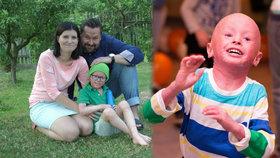 Manželé adoptovali nemocného Martínka (6): Nemám nic chytlavého, jen se loupu