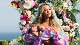 Celebrity na síti: Zadek Kairy Hrachovcové a dvojčata Beyoncé