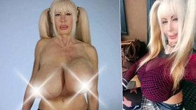 Pornoherečce (47) vytéká z poprsí č. 15 fujtajbl, konečně se rozhodla pro operaci