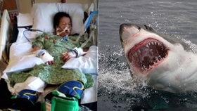 Žralok ukousl ženě kus nohy: Zkoušela mu vydloubat oči, aby přežila