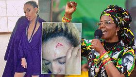 Myslela jsem, že zemřu: Žena afrického miliardáře a diktátora Mugabeho drsně zbila sexy modelku