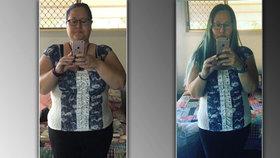 Žena zhubla 50 kilo za 15 měsíců. Obezitu porazila díky ketodietě