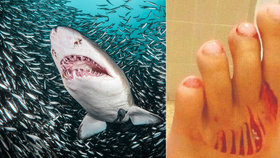 Útok žraloka v dovolenkovém ráji? Dívenku (11) ve vodě něco děsivě pokousalo
