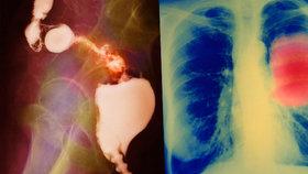Rakovina jednou za život postihne každého třetího Čecha: Na jaké nádory umíráme nejčastěji?