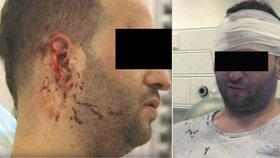 Čecha brutálně napadli v Dublinu: Milanovi ukousli kus ucha!