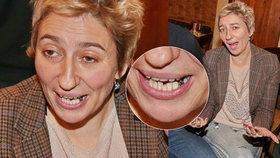 Herečka Simona Babčáková: Tohle nejsou zrovna zoubky jako perličky!