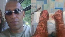 Po škrábnutí od psa skončil v kómatu: Lékaři mu teď chtějí amputovat nohy