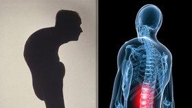 Zákeřná nemoc se tváří jako běžná bolest zad: Páteř ale po čase ztuhne na kámen
