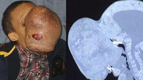 Chlapci (†14) odoperovali obří nádor z obličeje: Zemřel na pooperační komplikace