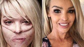Kvůli žárlivosti jí bývalý přítel znetvořil tvář kyselinou: Jak vypadá modelka dnes?