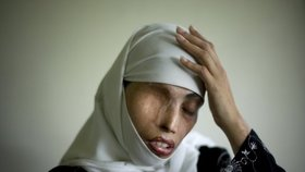 Oko za oko: Írán nařídil oslepit ženu. Kyselinou připravila sokyni o zrak