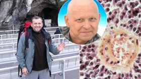 Honza (61) trpí krevním nádorem: Měl jsem kostru prožranou jak od červotočů