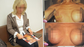 Jaroslavě (61) chirurgové zohyzdili prsa: Za zpackanou plastiku chce milion!