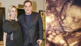 Etzler o těhotenství své partnerky: S dalším dítětem už jsem nepočítal