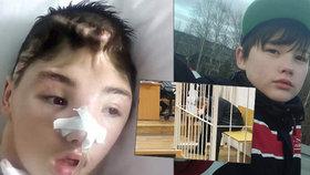 Ivan (15) bránil mámu před znásilněním, skončil v kómatu: Znovu se učí chodit
