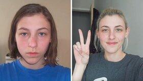 Fotila selfie každý den od čtrnácti do dvaadvaceti. Jak se změnila?