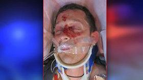 Na Nymbursku srazil zfetovaný řidič cyklistu: Zraněného muže nikdo nezná, policie prosí o pomoc