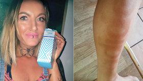 To je ale blondýna! Kráska (36) si samoopalovákem vypálila na nohu »Adidas«