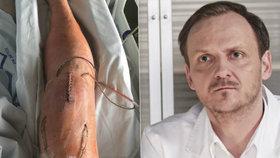 Nová tvář Ordinace Jan Hájek: Seriál mu zachránil nohu, hrozila amputace!