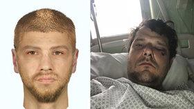 """""""Kryl jsem syna vlastním tělem a přijímal rány."""" Napadený cyklista popsal brutální útok pejskaře"""
