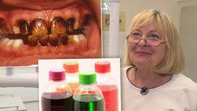Dělník (30) si limonádami za 420 tisíc zničil zuby. Škodí i saláty a voda s citronem