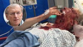Exvelvyslance (74) zbili na ulici: Po brutálním útoku leží v nemocnici