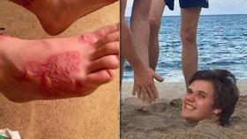 Michaela (17) na pláži zakopali do písku: Do nohy se mu nastěhovali červi