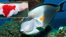 Agresivní ryba útočí na Čechy v Egyptě. Ocasní břitvou přetne i achilovku