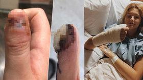 Dívka (20) si kousáním nehtů způsobila rakovinu! Lékaři jí museli amputovat kus ruky