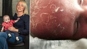 Batole odsoudila nemoc k životu ve tmě: Má alergii na sluneční paprsky