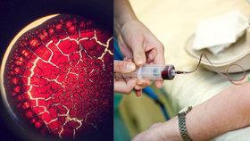 Nemocnice zdarma otestují krev: Mrkněte doktorům pod mikroskop!