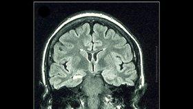 Epileptický záchvat? Do úst nemocnému nic nestrkejte, varují odborníci