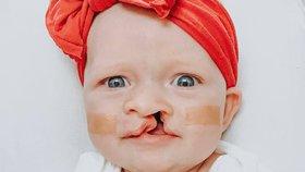 Malá Chris se narodila s rozštěpem rtu, ale Instagram ji miluje!