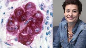 Veronika (41) o nádoru prsu: Věřila jsem, že rakovina nebolí! Byl to omyl