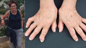 Marii se bolestivě zkroutily prsty na nohou. Lékař jí dal termín za půl roku