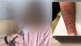 Osmačka se podřezala na školních záchodcích. Kvůli šikaně od spolužáků
